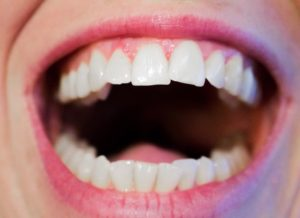 Teeth Mouth Hygiene Dental White Dentist